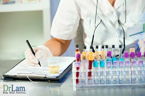 CBS mutation urine testing