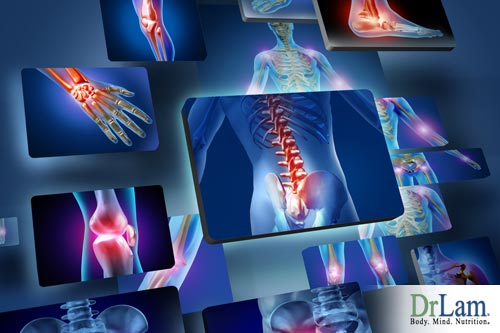 Chronic Inflammation: Causes, Mechanisms, and Solutions