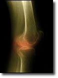 Pantothenic Acid can help our bones