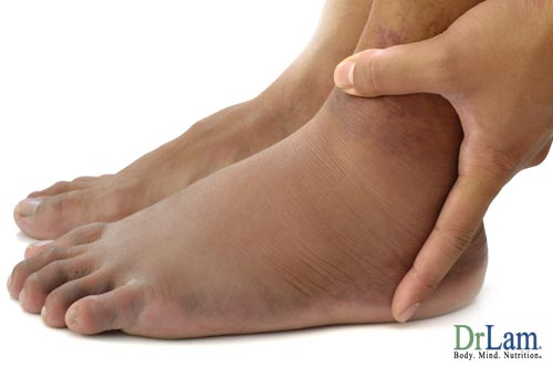 Andropause symptoms treatment can cause ankle swelling